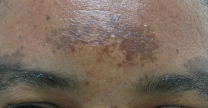 Effective Home Remedies for Removal of Acne